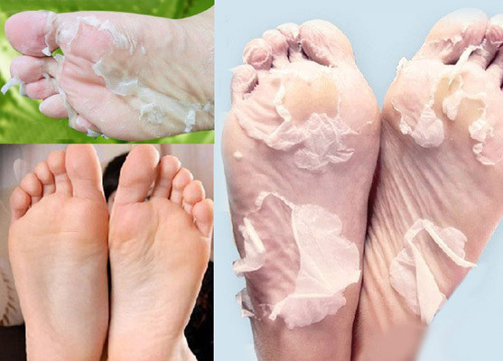 Фото носков для педикюра
